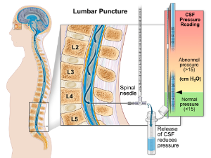 ... improve the collection of CSF during the lumbar puncture procedure
